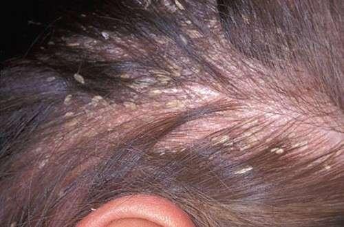 Почему появляется перхоть? Лечение традиционными и народными методами