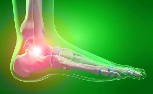 Подагра на ногах (подагрический артрит)